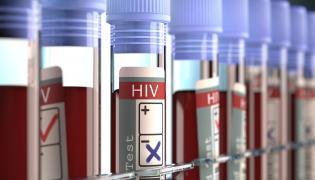 Krew pobrana do testów na HIV