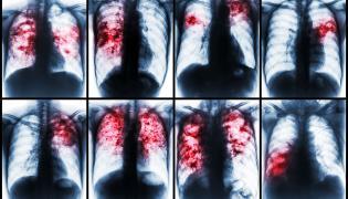 Gruźlica na zdjęciu rentgenowskim
