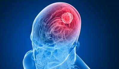 Choroby ukąłdu krążenia najczęstszą przyczyną udaru mózgu