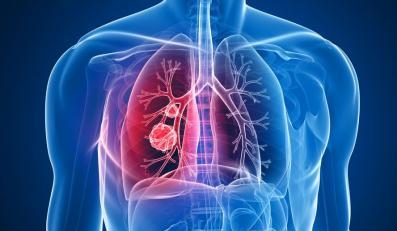 Rak płuca rozwija się coraz głębiej