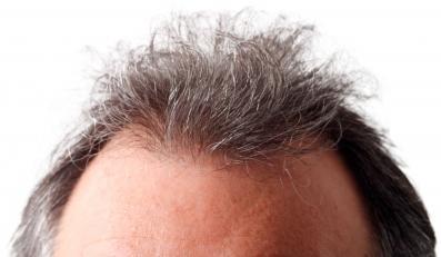 Lek na siwe włosy i bielactwo