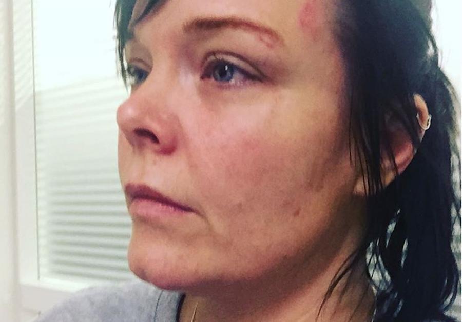 Anette Olzon została pobita i okradziona