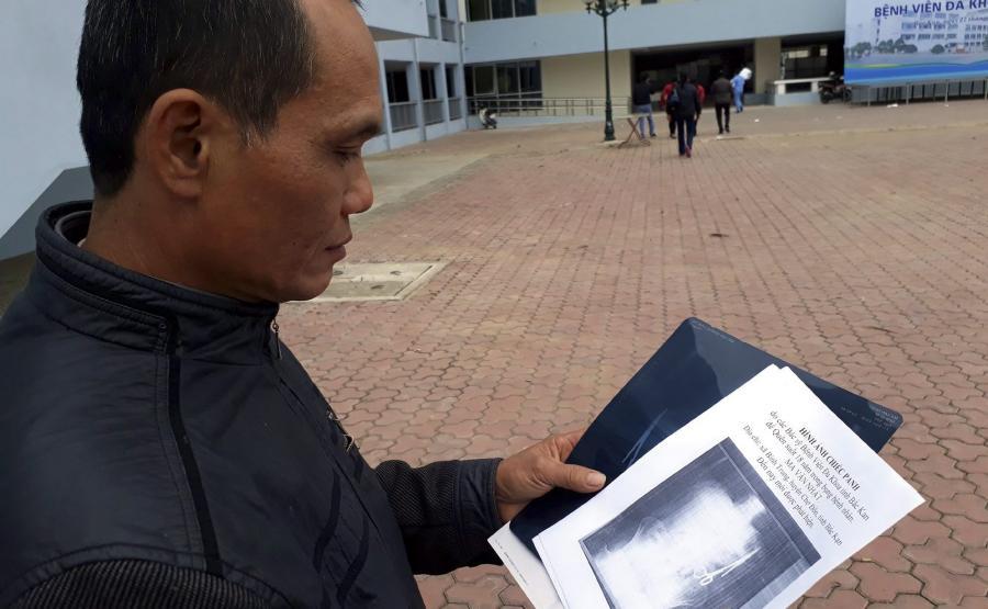Ma Van Nhat, 54-letni mieszkaniec Wietnamu, przez 18 lat nosił nożyczki zaszyte w brzuchu