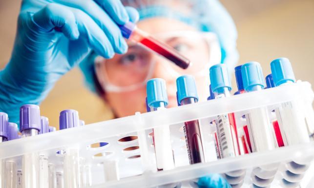 Sprawdź, czy masz wirusa HCV, wywołującego raka. Darmowe testy
